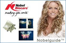 Nobel Guide Verfahren