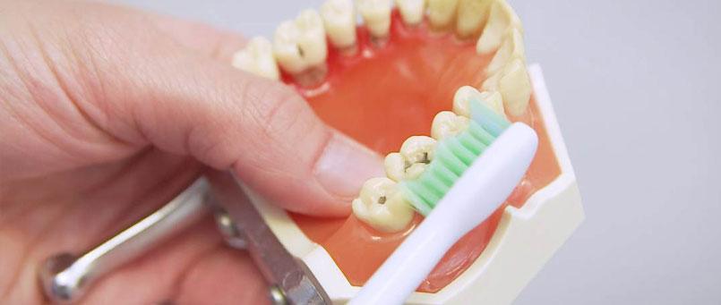 Mundhygieneprogramm